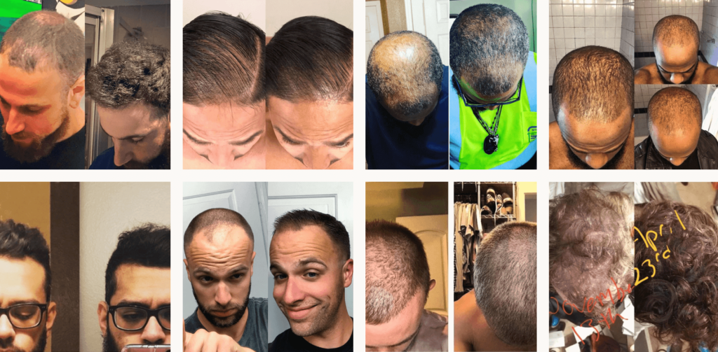 Hims Hair Products Reviews | himsreviews.com